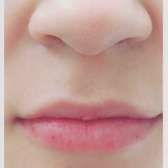 25-34 year old woman treated with Juvederm after 3471992