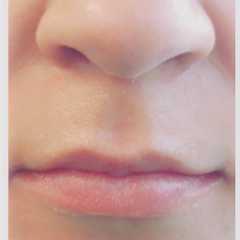 25-34 year old woman treated with Juvederm before 3471992