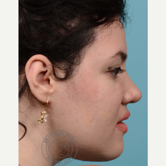18-24 year old woman treated with open Rhinoplasty and base of nose narrowing after 3092688