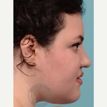 18-24 year old woman treated with open Rhinoplasty and base of nose narrowing before 3092688