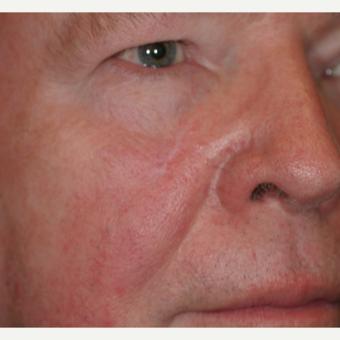 70 year old man with Basal Cell Carcinoma on the right lower eyelid/cheek area after 3219741