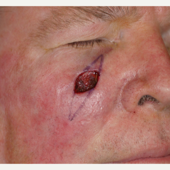 70 year old man with Basal Cell Carcinoma on the right lower eyelid/cheek area before 3219741