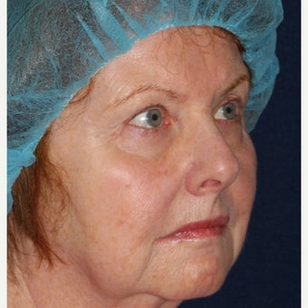 69 year old woman treated by Dr. Groff with Photofacial technique after 1645549