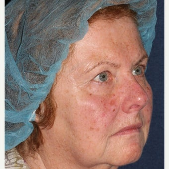 69 year old woman treated by Dr. Groff with Photofacial technique before 1645549