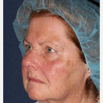 69 year old woman treated by Dr. Groff with Photofacial technique 1645549
