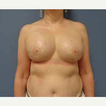 55-64 year old woman treated with Breast Reconstruction after 3737954