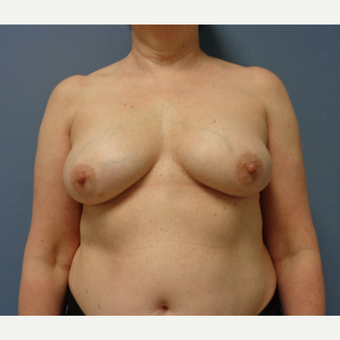 55-64 year old woman treated with Breast Reconstruction before 3737954