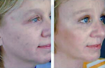 Complete Facial Rejuvenation after 138168