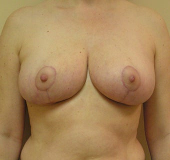 Breast Reduction after 1341243