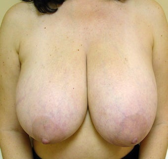 Breast Reduction before 1341243