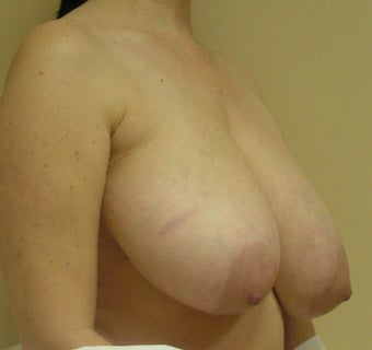 Breast Reduction 1341243