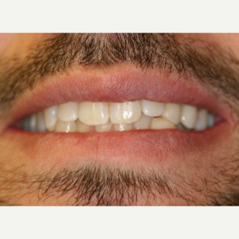 25-34 year old man treated with Porcelain Veneers after 3087500
