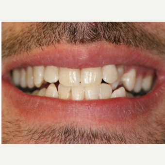 25-34 year old man treated with Porcelain Veneers before 3087500