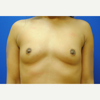 25-34 year old woman treated with Breast Augmentation before 3299825