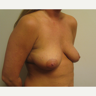 35-44 year old woman treated with Breast Lift with Implants before 3539026