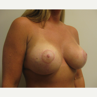 35-44 year old woman treated with Breast Lift with Implants after 3539026