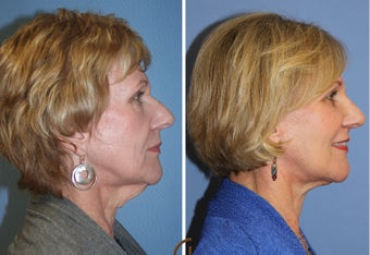 Natural Looking Lower Face Lift with Fat Grafting  418253