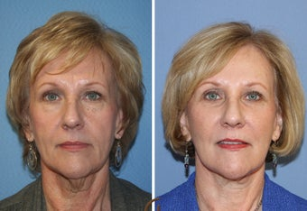 Natural Looking Lower Face Lift with Fat Grafting  before 418253