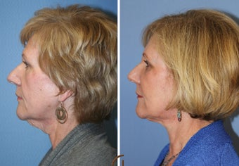Natural Looking Lower Face Lift with Fat Grafting  after 418253