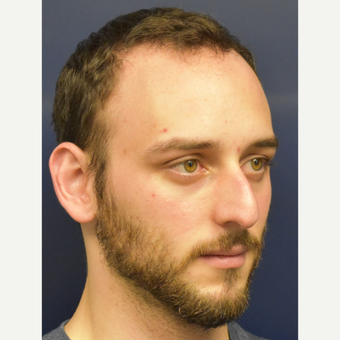 18-24 year old man treated with Rhinoplasty before 3067136