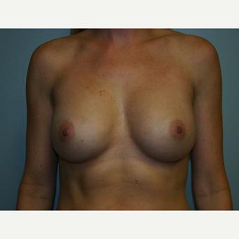 Breast Augmentation after 3562101