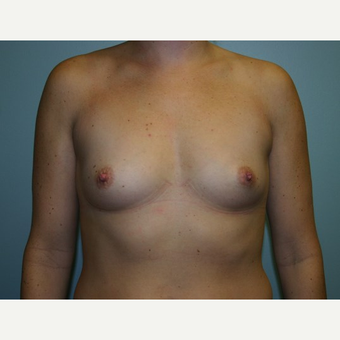 Breast Augmentation before 3562101