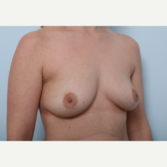 Breast Augmentation before 3508156