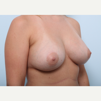 Breast Augmentation after 3508156