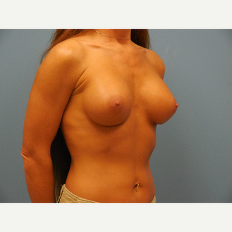 35-44 year old woman treated with Breast Augmentation after 3685477