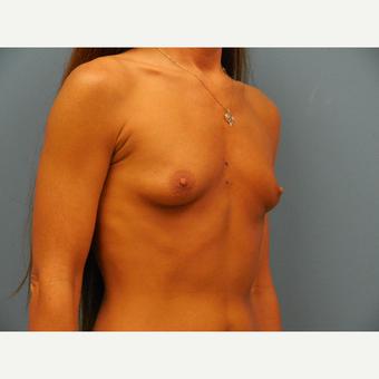 35-44 year old woman treated with Breast Augmentation before 3685477
