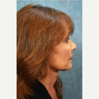 65-74 year old woman treated with Neck Lift