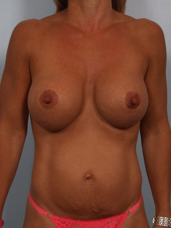 Breast Augmentation Revision with Strattice