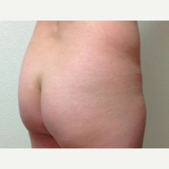 25-34 year old woman, liposuction and fat transfer to buttocks. before 1714126