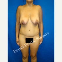 35-44 year old woman treated with Breast Implants before 3495052