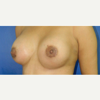 25-34 year old woman treated with Breast Augmentation after 3132672