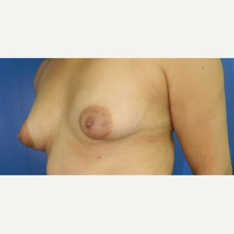 25-34 year old woman treated with Breast Augmentation before 3132672
