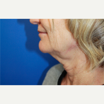 45-54 year old woman treated with Facelift before 3400704