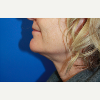 45-54 year old woman treated with Facelift after 3400704