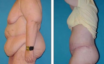 Tummy Tuck- Abdominoplasty before 1118327