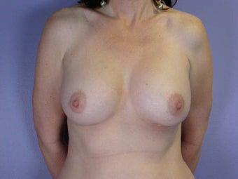 Breast Augmentation after 281447