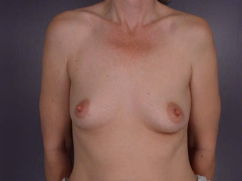 Breast Augmentation before 281447