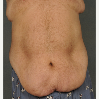 45-54 year old man treated with Tummy Tuck before 2975558