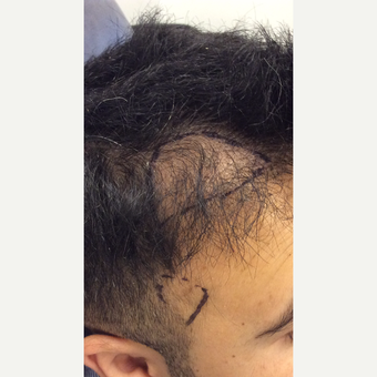18-24 year old man treated with ARTAS Robotic Hair Transplant before 3816324