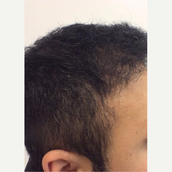18-24 year old man treated with ARTAS Robotic Hair Transplant after 3816324