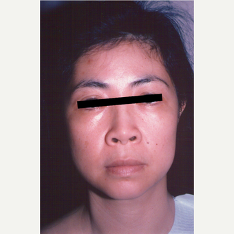 35-44 year old woman treated with Facelift before 3539044