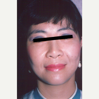 35-44 year old woman treated with Facelift after 3539044