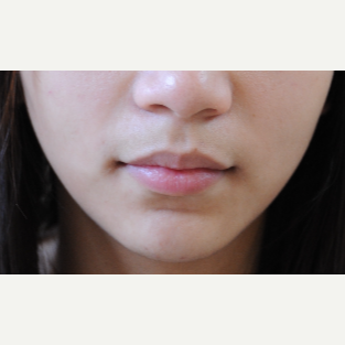 18-24 year old woman treated with Lip Augmentation before 3513917