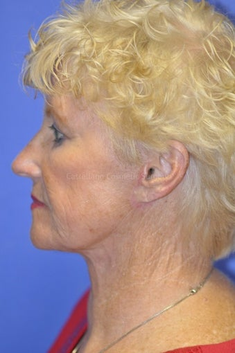 Woman, skin rejuvenation with injectable fillers after 851391