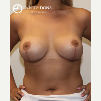 18-24 year old woman treated with Breast Reduction after 2967828