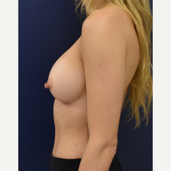 25-34 year old woman treated with Breast Implants after 3711178